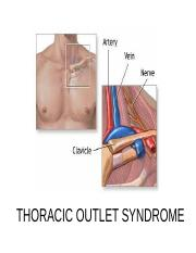 4- Thoracic outlet syndrome