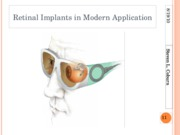 Retinal Implants in Modern Application