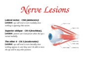 Unit 7 Lecture 1 supplement - Nerve Lesions