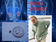 kidneystone
