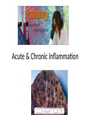 Lecture 2 Acute  Chronic Inflammation