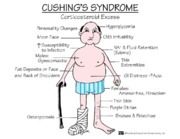 Cushings Syndrome mnemonic notes