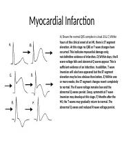 11.1 Myocardial Infarction.ppt